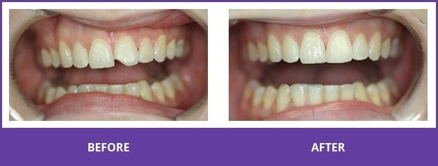Before and after image of smile makeover by dentist in Wasilla, AK.