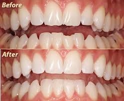 Before and after photo of dental bonding case by dentist in Wasilla, AK.