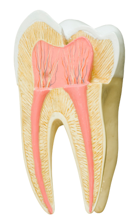 Diagram of a root canal at Wasilla, AK dentist's office.